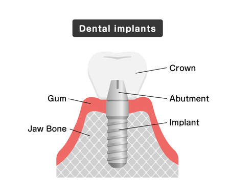 Dental implant flat vector illustration Vectores