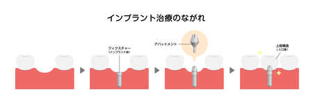 Dental implant process flat vector illustration  (Japanese)  イラスト・ベクター素材