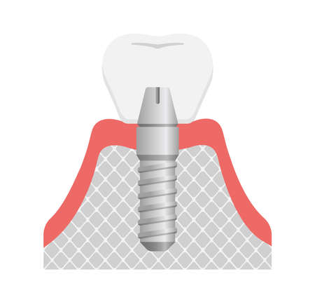 Dental implant flat vector illustration (No text)  イラスト・ベクター素材
