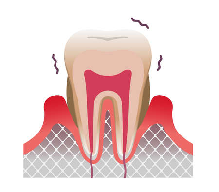periodontal disease tooth and gum flat vector illustration
