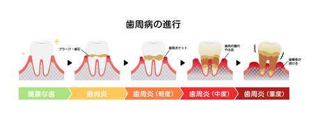 The stages of periodontitis disease vector illustration