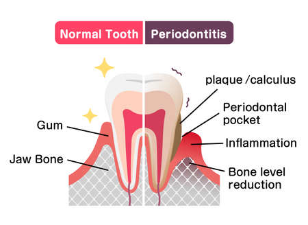 Comparison of normal teeth and periodontal disease. flat vector illustration