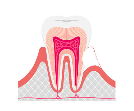 Cause and mechanism of Sensitive teeth vector illustration / no text