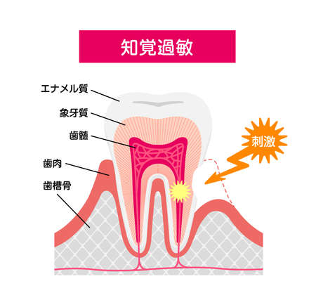 Cause and mechanism of Sensitive teeth vector illustration / Japanese 일러스트