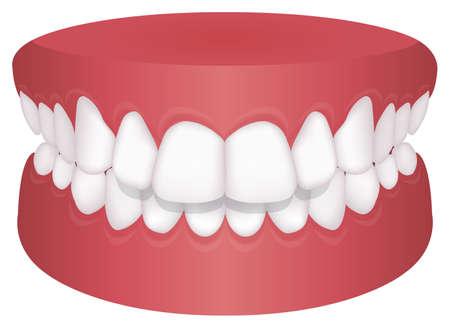 Teeth trouble ( bite type ) vector illustration /Overbite (Back teeth)