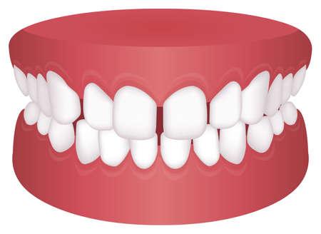 Teeth trouble ( bite type ) vector illustration / /Excessive Spacing