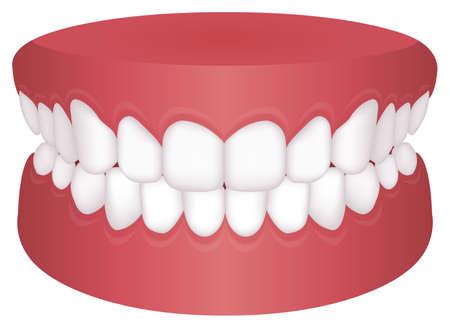 Teeth trouble ( bite type ) vector illustration /Normal Bite Vector Illustration