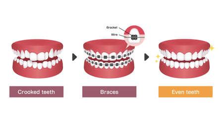 Dental braces process vector illustration