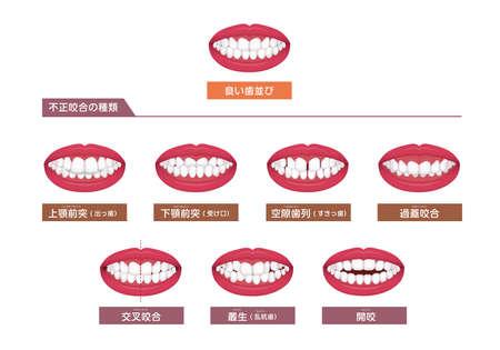 Teeth trouble ( bite type / crooked teeth ) vector illustration set