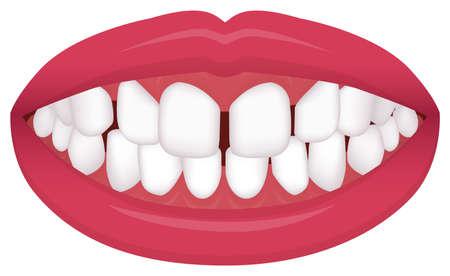 Teeth trouble ( bite type / crooked teeth ) vector illustration /Excessive Spacing