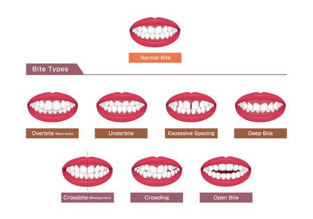 Teeth trouble ( bite type / crooked teeth ) vector illustration set Vektorové ilustrace