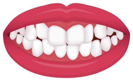 Teeth trouble ( bite type / crooked teeth ) vector illustration /Crowding