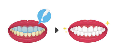 whiten Teething vector / illustration before and after