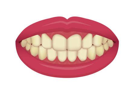 Teeth whitening at home vector illustration / yellowed teeth Illusztráció