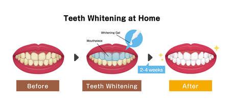 Teeth whitening vector illustration / before and after Illusztráció