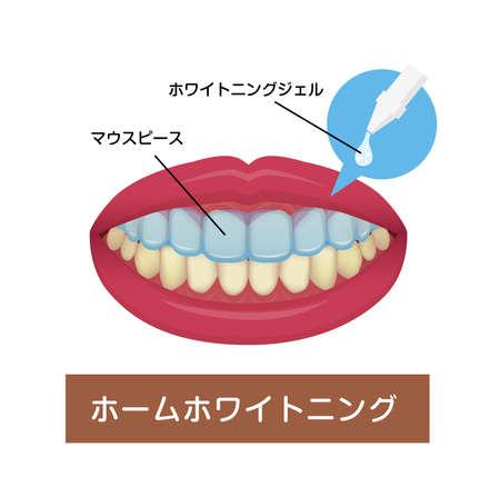 Teeth whitening at home vector illustration (Japnaese) Illusztráció