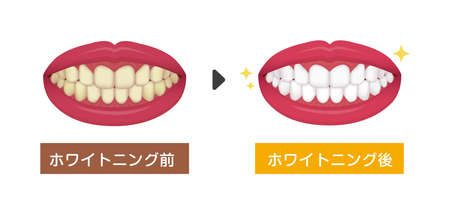 Teeth whitening vector illustration / before and after (Japanese)