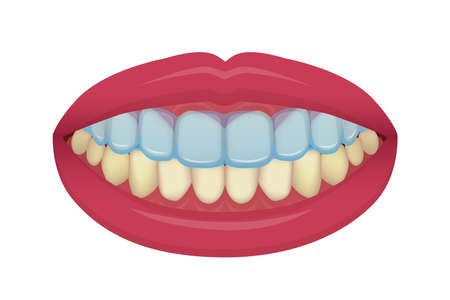 Teeth whitening at home vector illustration / no text