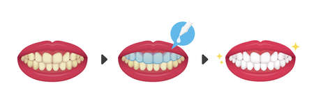 Teeth whitening vector illustration / before and after (No text)