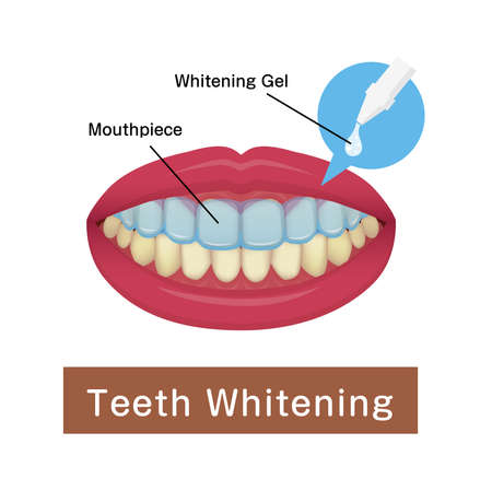 Teeth whitening at home vector illustration