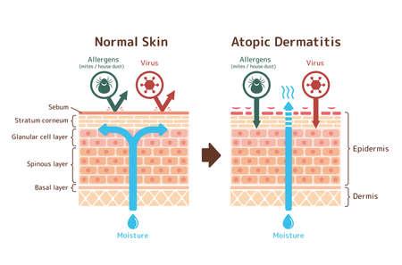 Sectional View of Basic dermatitis and normal skin / Common vector illustration Ilustração Vetorial