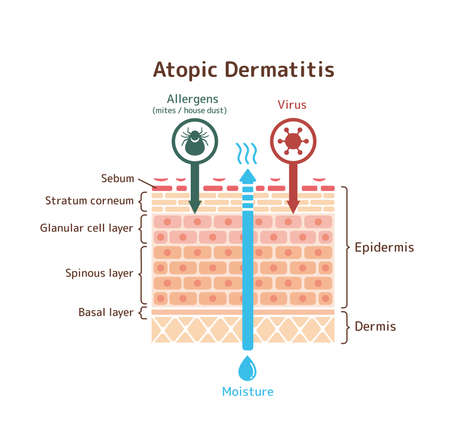 Sectional view of atopic dermatitis / vector illustration