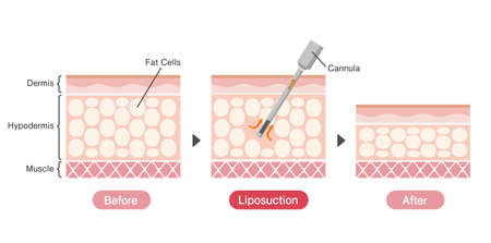 Liposuction process vector illustration / sectional view of skin