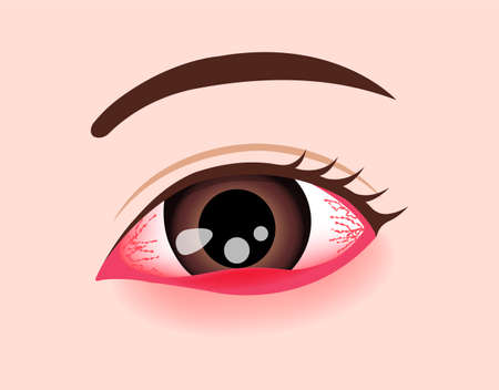 Eye Disease Vector Illustration / Sthye, Hadeolum