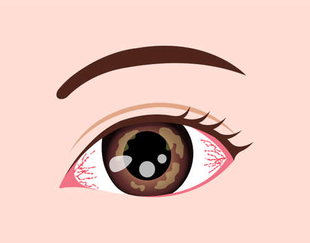 Eye Disease Vector Illustration / Herpetic Keratitis