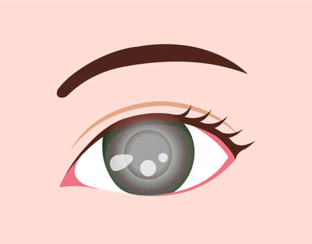 Eye disease vector illustration / Glaucoma