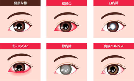 Various eye diseases vector illustration ( female eye )