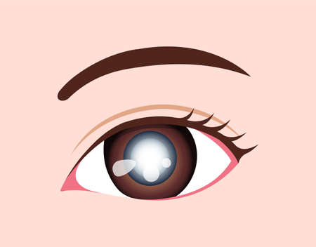 Eye disease vector illustration / Cataract