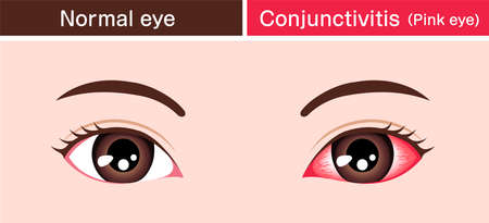 Normal eye and conjunctivitis (pink eye) vector illustration Ilustracja