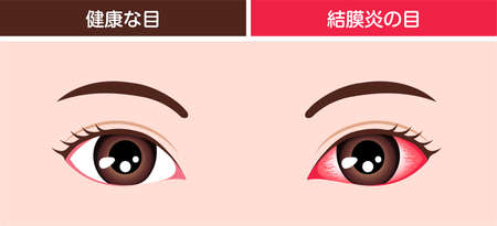 Normal eye and conjunctivitis (pink eye) vector illustration Иллюстрация