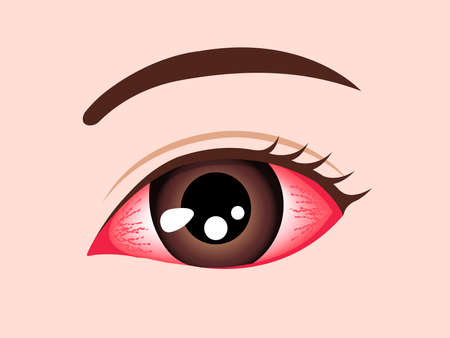 Conjunctivitis (pink eye) vector illustration Иллюстрация