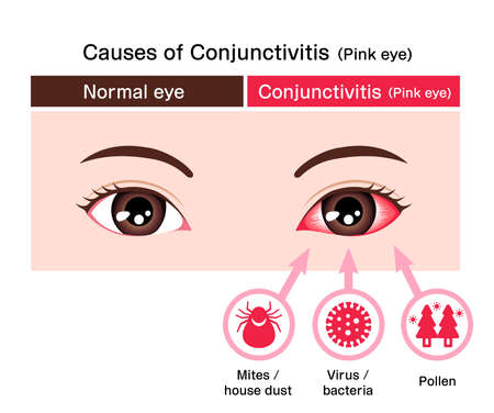 Causes of conjunctivitis (pink eye) vector illustration