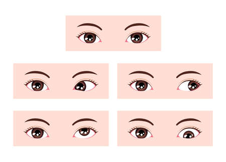 Types of strabismus vector illustration