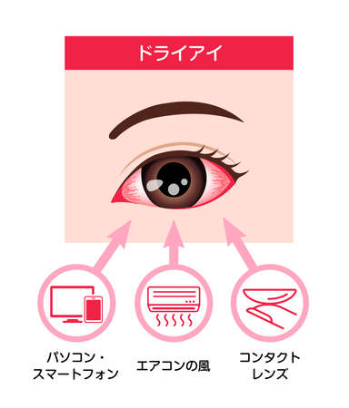 Causes of dry eye vector illustration (Japanese)