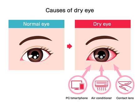 Causes of dry eye vector illustration