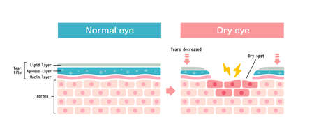 Comparison illustration between normal and dry eye. Cross section of eye surface.