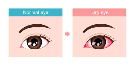Comparison illustration between normal and dry eye.