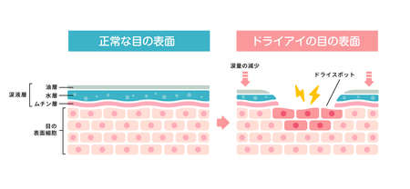 Comparison illustration between normal and dry eye. Cross section of eye surface. (Japanese) Ilustracja