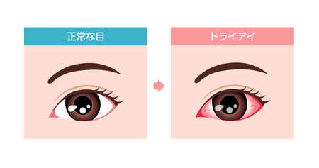Comparison illustration between normal and dry eye Ilustracja