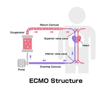 ECMO ( Extracorporeal membrane oxygenation ) structure vector illustration Vetores