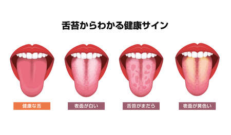 Tongue's health sign vector illustration ( White coated tongue ) Vecteurs