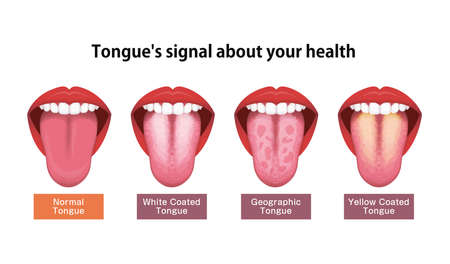 Tongue's health sign vector illustration ( White coated tongue )