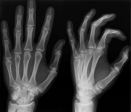 thumb x ray: Left hand x-ray shoot in two versions.