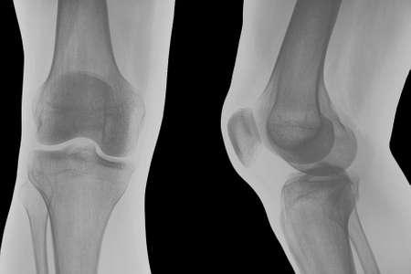 x rays: Right knee x-ray shoot. Stock Photo