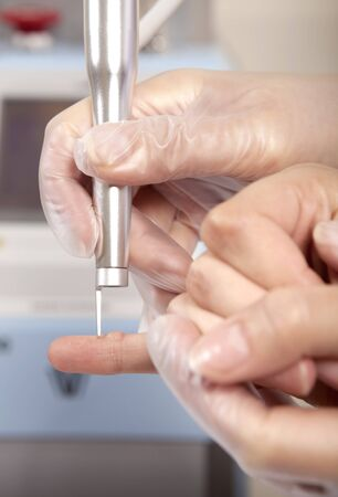 laser removal of wart Stock Photo