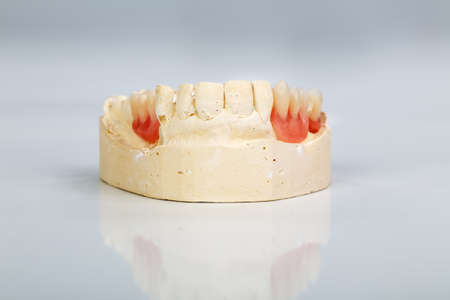 dental resin: A partial denture mounted on a plaster study model and placed on a shiny gray background
